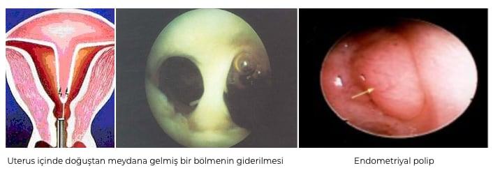 İnfertil Hastalarda Histeroskopi İndikasyonları - Prof. Dr. Hasan Serdaroğlu