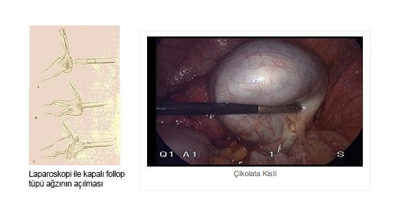 laparoskopi-cikolota-kisti