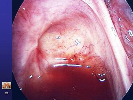 Erken evre endometriozis