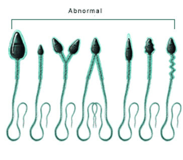 anormal sperm