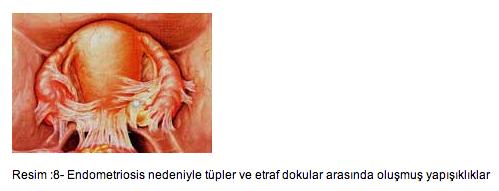 tuba-peritoneal-faktor