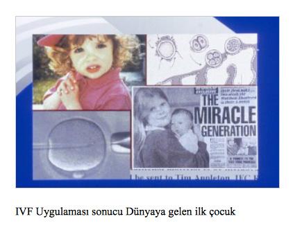 tup-bebek-gazete