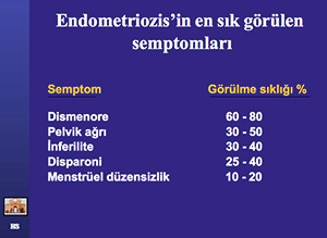 Endometriozis Sık Görülen Semptomlar