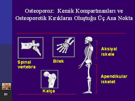 osteoporoz-04