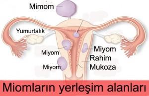 Hamilelik ve miyom
